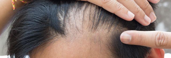 zabiegi na wypadające włosy